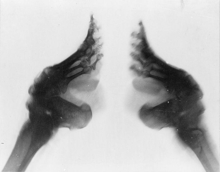 radiografía pies de loto