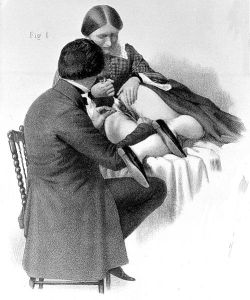 James Marion Sims' operation for vesico-vaginal fistula