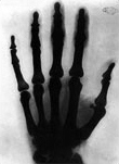 radiologia mano tesla