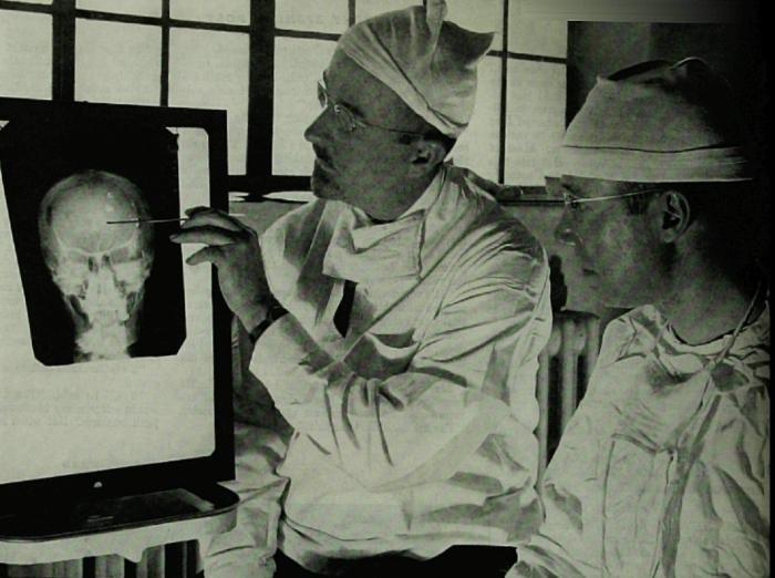 Dr. Walter Freeman, izquierda, y el Dr. James W. Watts estudian una radiografía antes de una operación de psicocirugía