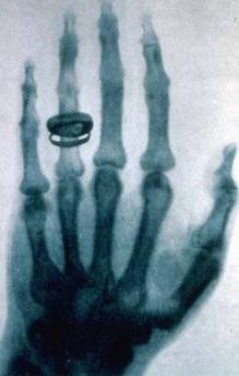 rontgen  primera radiografia ser humano
