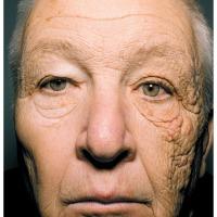 Una huella imborrable en la piel por el sol