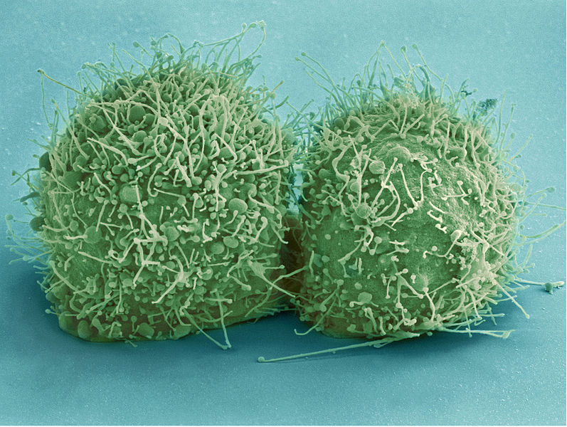 Scanning electron micrograph of just-divided HeLa cells.